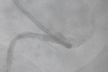 Caso clínico: Realización de  ACTP a la arteria CD