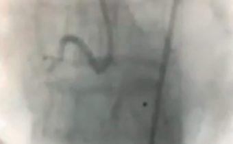 Caso clínico: Infarto Agudo del Miocardio, sin elevación ST
