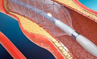 Intervencionismo Coronario (Angioplastía y Colocación de Stent)
