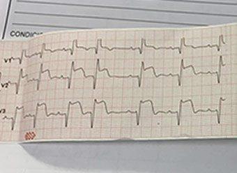 Caso Clínico: Cardiopatía isquémica