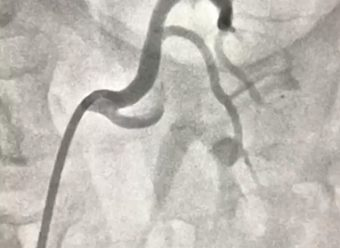 Estudio de  Arteriografia Renal