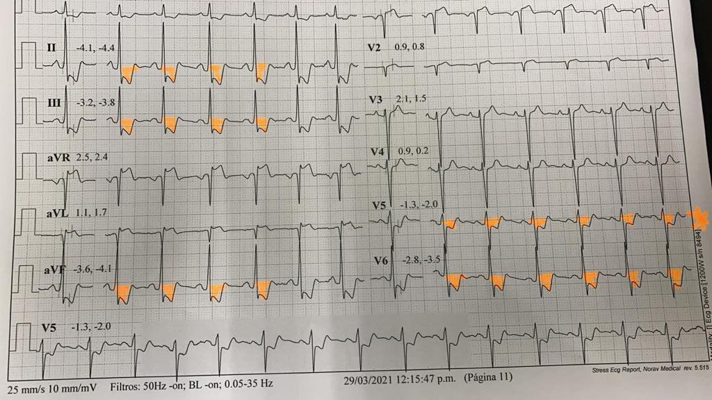 Caso Clinico: Cardiopatía isquemica